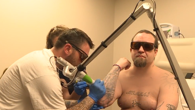 New resource allows former inmates to continue tattoo removal ...